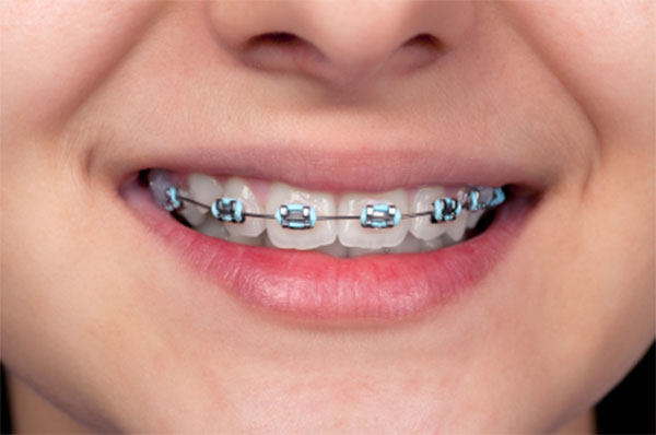 Choosing The Right Braces for Your Kids